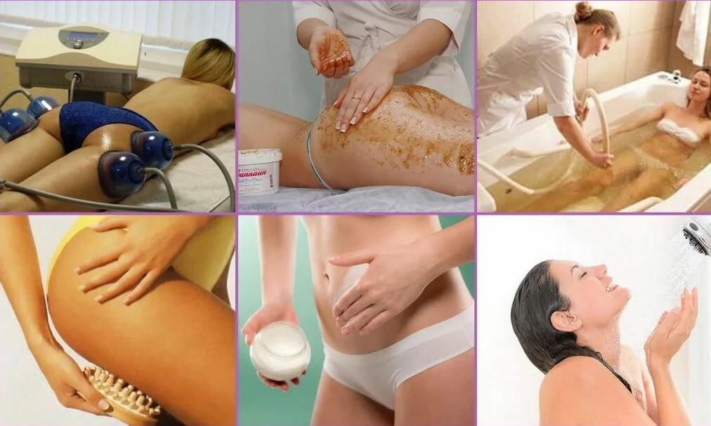 Как правильно делать массаж сухой щеткой от целлюлита: схемы, фото