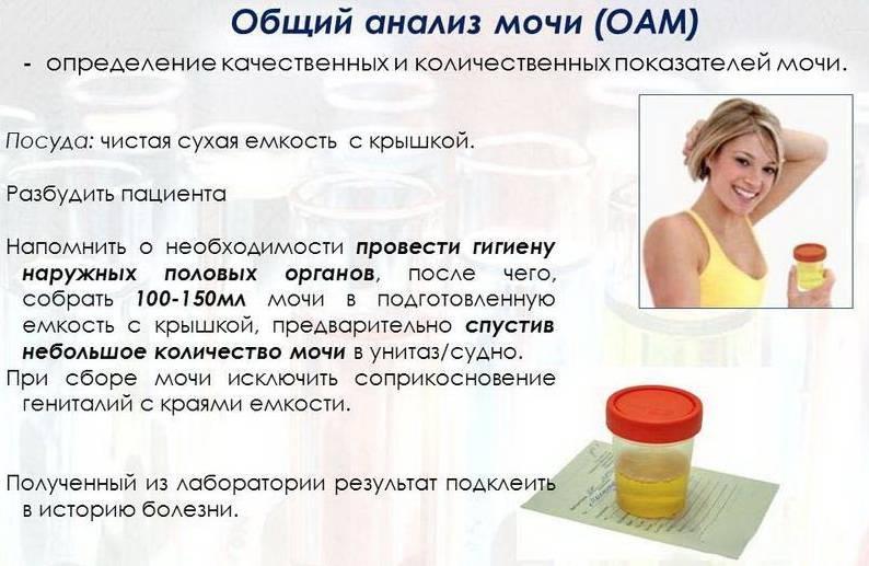 Анализ мочи при беременности - mama.ru