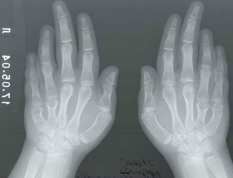 Брахидактилия большого пальца