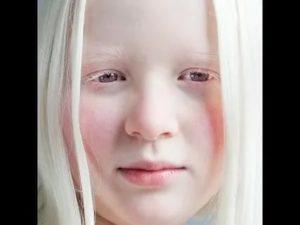 «белая ворона», или особенности здоровья и развития ребенка-альбиноса. альбинизм: особенности заболевания и причины его возникновения альбиносы - дар небес