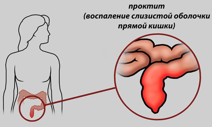 Выпадение прямой кишки – лечение у детей, причины, симптомы