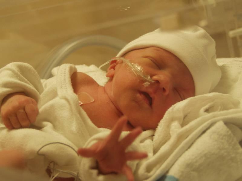 Гипоксия головного мозга у новорожденных: что это такое, симптомы, лечение, последствия и диагностика заболевания