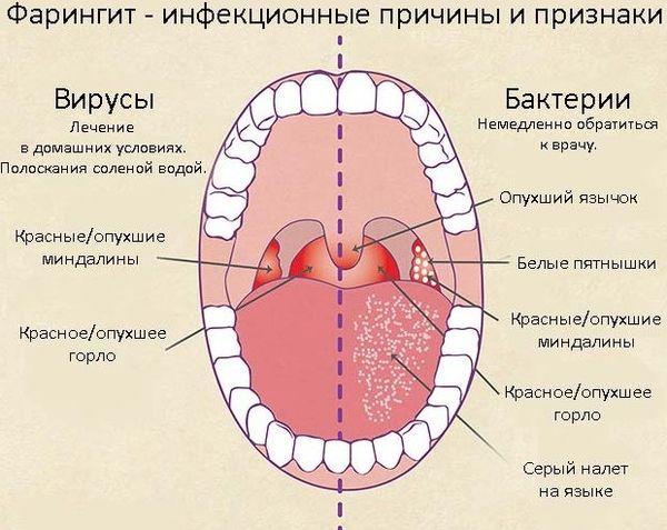 Фарингит у беременной: симптомы, влияние на беременность, последствия для плода и лечение