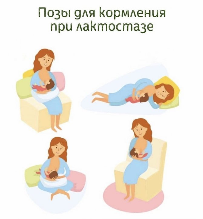 Лактостаз у кормящей матери: симптомы и лечение   уроки для мам