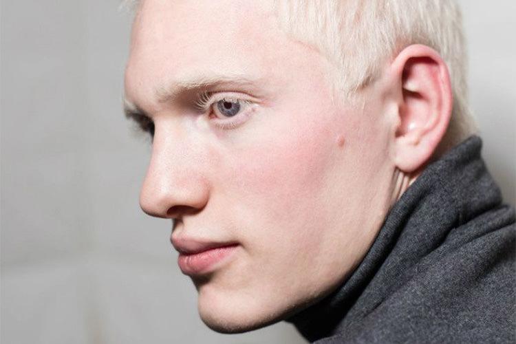 Где живут альбиносы. кто такие люди альбиносы и можно ли вылечить альбинизм