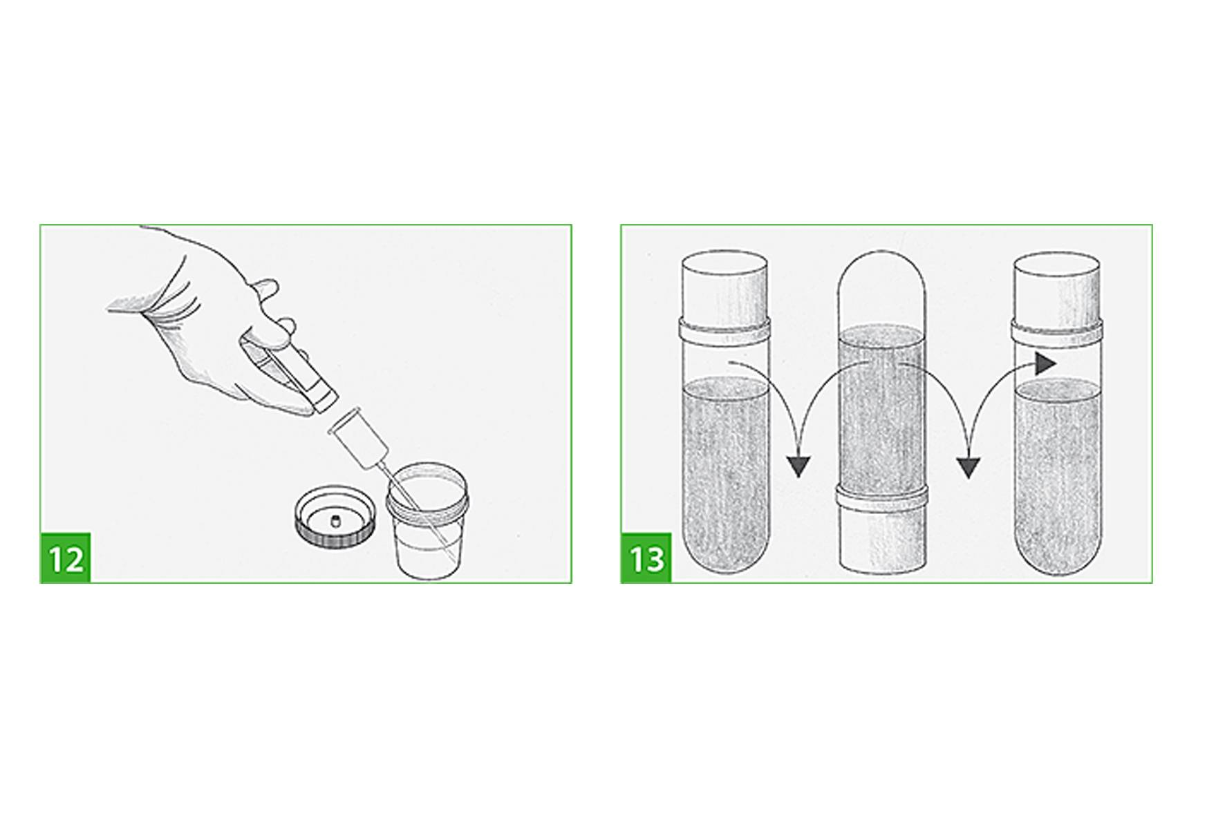 Как сдавать анализ мочи с тампоном - здрав-почки