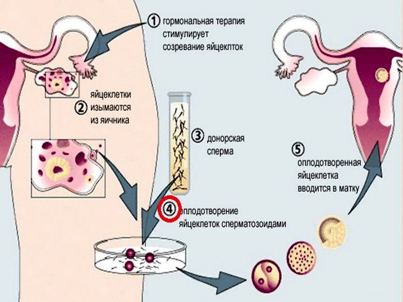 Криоконсервация эмбрионов при эко: омс, цена, плюсы и минусы