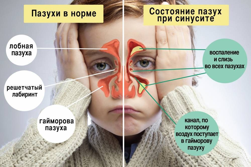 Гайморит у детей: симптомы и лечение