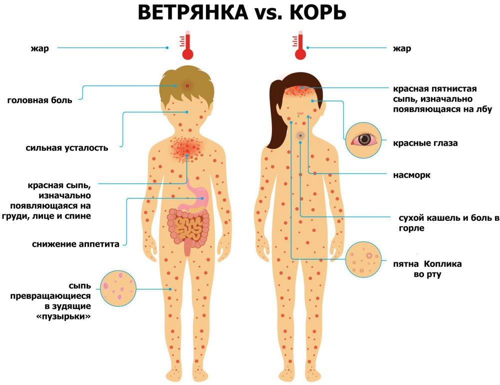 Краснуха у детей: симптомы, как отличить, лечение, формы заболевания, осложнения