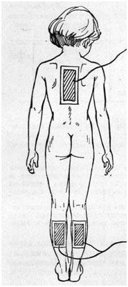 Электрофорез для грудничков: лечебная процедура, которой не надо бояться
