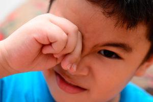Почему ребенок постоянно чешет нос - возможные причины | zudmed.ru – всё о зуде за 7 минут