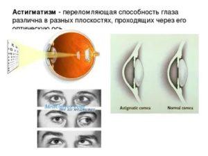 Астигматизм у детей - лечится или нет очками и гимнастикой, причины и коррекция нарушения, можно ли вылечить операцией