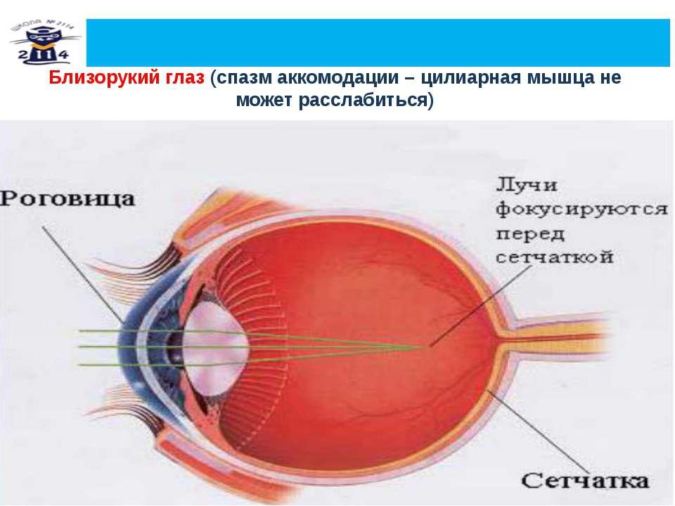 Гимнастика для глаз при спазме аккомодации