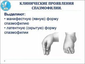 Спазмофилия у детей - симптомы болезни, профилактика и лечение спазмофилии у детей, причины заболевания и его диагностика на eurolab