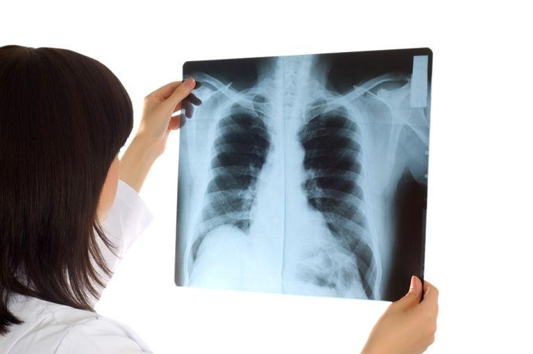 Насколько часто взрослый человек может делать рентген легких