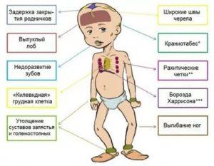 Лечение и профилактика рахита у детей