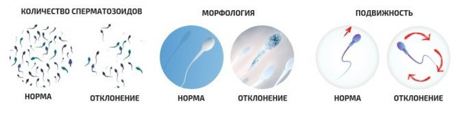 Как улучшить спермограмму?
