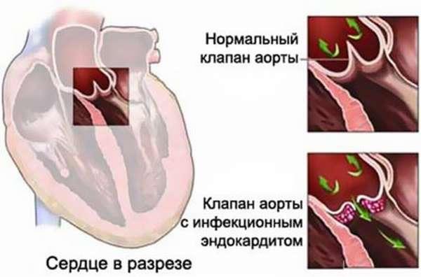 Бактериальный эндокардит: причины, симптомы и лечение