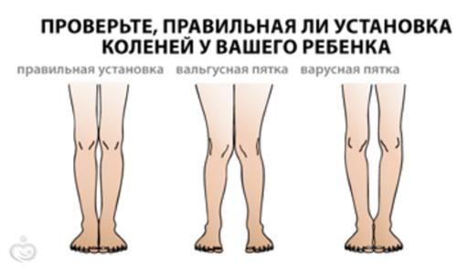 Упражнения при вальгусной деформации коленных суставов у детей: лечебная физкультура и гимнастика на каждый день, методики ортопедического лфк | статья от врача