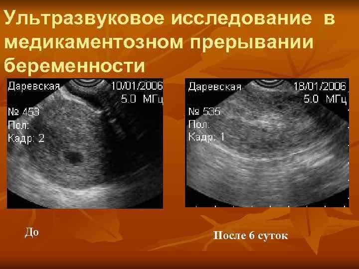 Первое узи при беременности: сроки проведения и нормы показателей