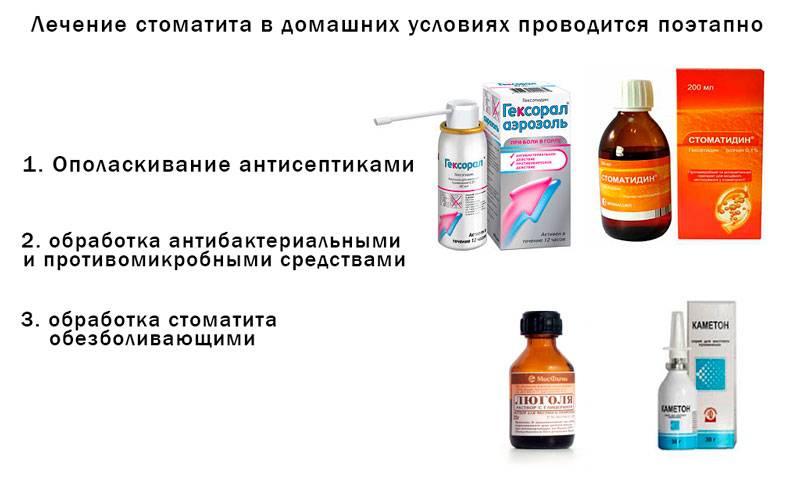 Стоматит у детей: какие препараты (жидкие средства, мази и другое) помогают при обработке слизистой во рту