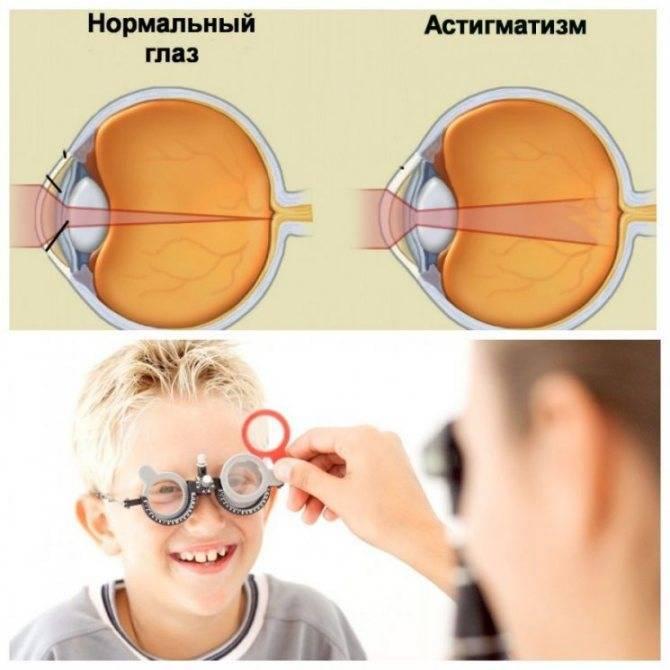 Смешанный астигматизм у детей, диагностика и лечение заболевания.