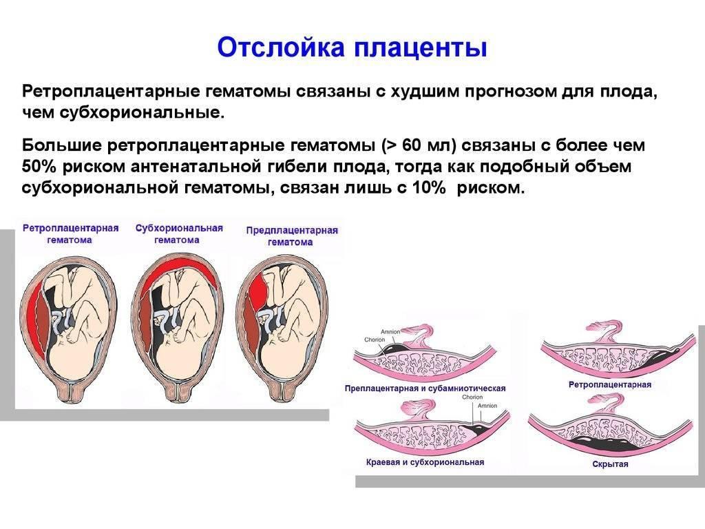 Краевое предлежание плаценты по задней стенке прогнозы