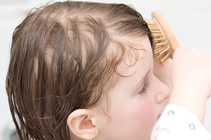 Почему у новорожденного ребенка плохо растут волосы на голове?