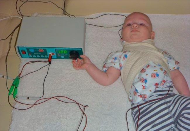 Электрофорез для чего назначают. инструкция по применению и побочные действия электрофореза с эуфиллином для грудничка — заболевания сердца