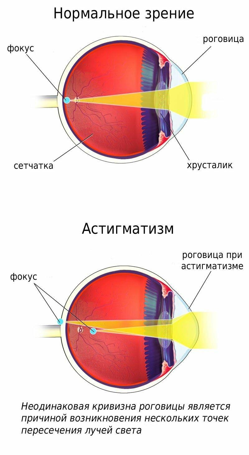 Дальнозоркость или гиперметропия у ребенка — лечение и профилактика