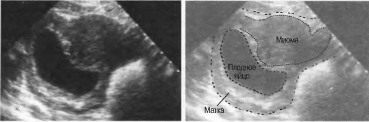 Можно ли спутать кисту яичника с беременностью на узи на раннем сроке