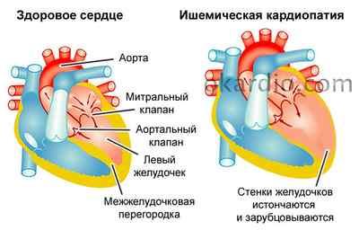 Кардиопатия — что это такое у детей? симптомы и лечение кардиопатии