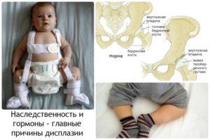 Как лечится дисплазия тазобедренного сустава у детей до года