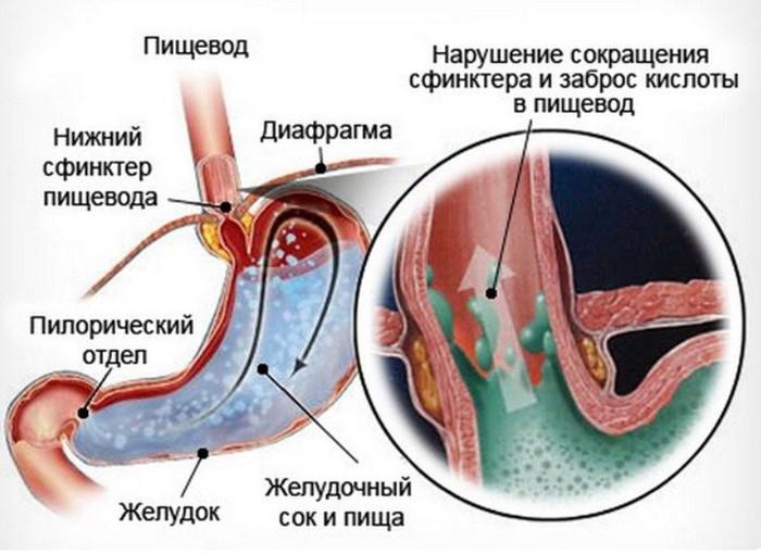 Эзофагит у детей (грудничков) - симптомы и лечение