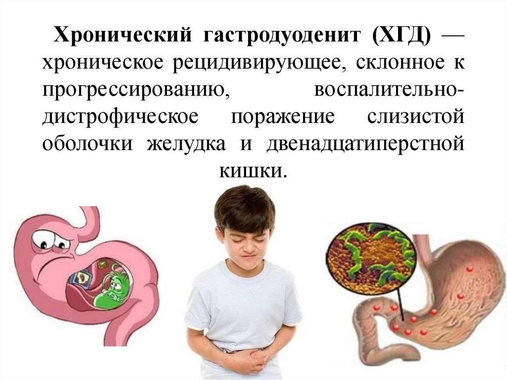 Язвенная болезнь у детей: симптомы, лечение и профилактика