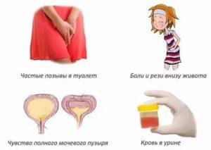 Как лечить цистит у девочек: симптомы и лечение, детский цистит в 5-8 лет
