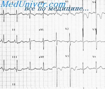 Что такое нарушение внутрижелудочковой проводимости сердца у ребенка на ЭКГ, как это лечится?