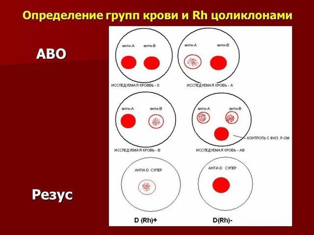 Для чего необходим анализ крови для определения группы и резус-фактора при беременности