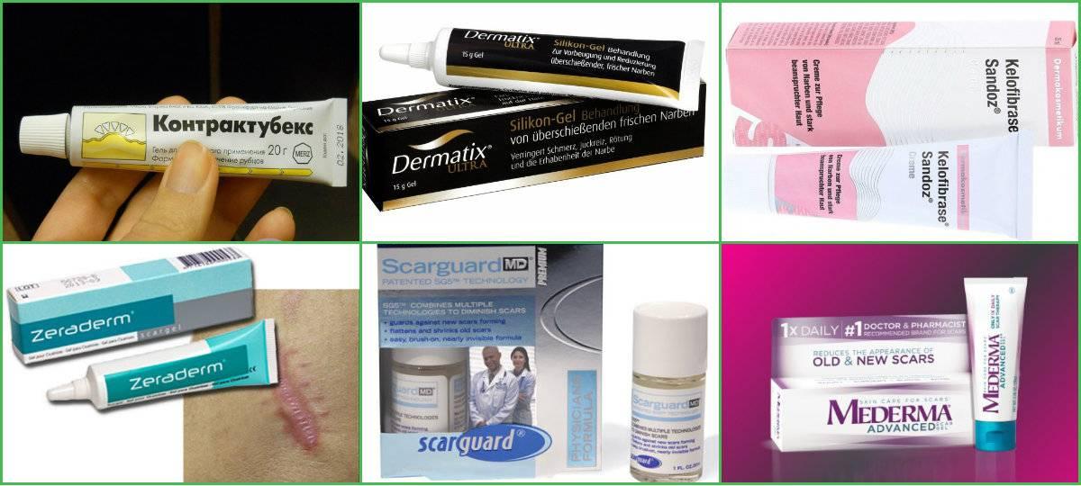Какие заживляющие мази для кожи лица самые эффективные
