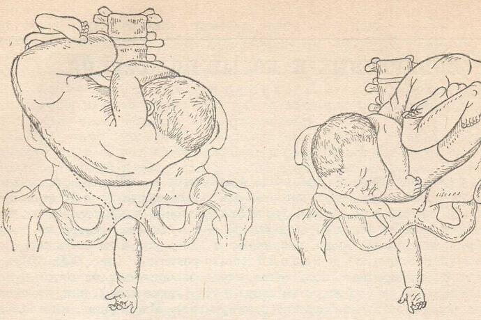 20.акушерский поворот. акушерство и гинекология