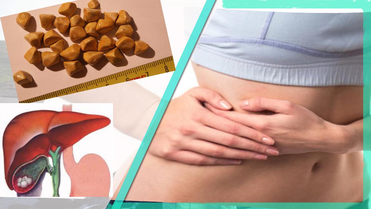 Холецистит (хронический, острый) при беременности: симптомы, влияние на плод, лечение, диета