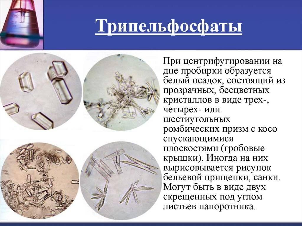 Фосфаты в моче у ребенка комаровский - здрав-почки