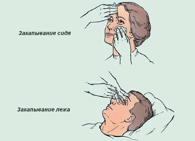 Как капать капли в нос новорожденному?