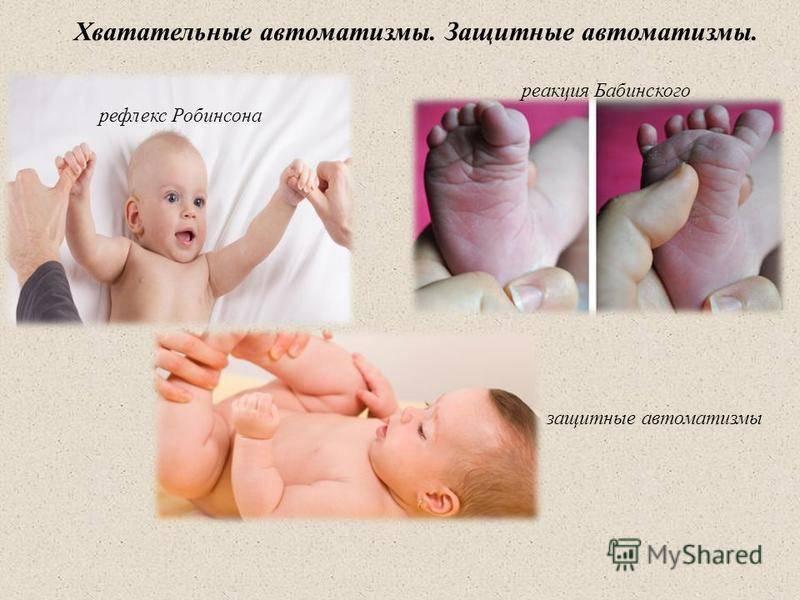 Рефлексы новорожденного | уроки для мам