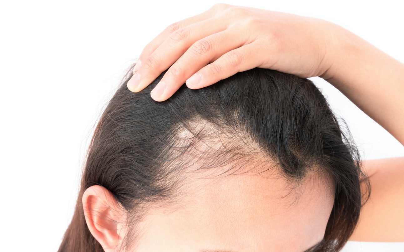 Выпадение волос у ребенка: что делать, причины потери, лечение, маски, какие витамины влияют, а также чем укрепить и как лечить сильно редеющую шевелюру