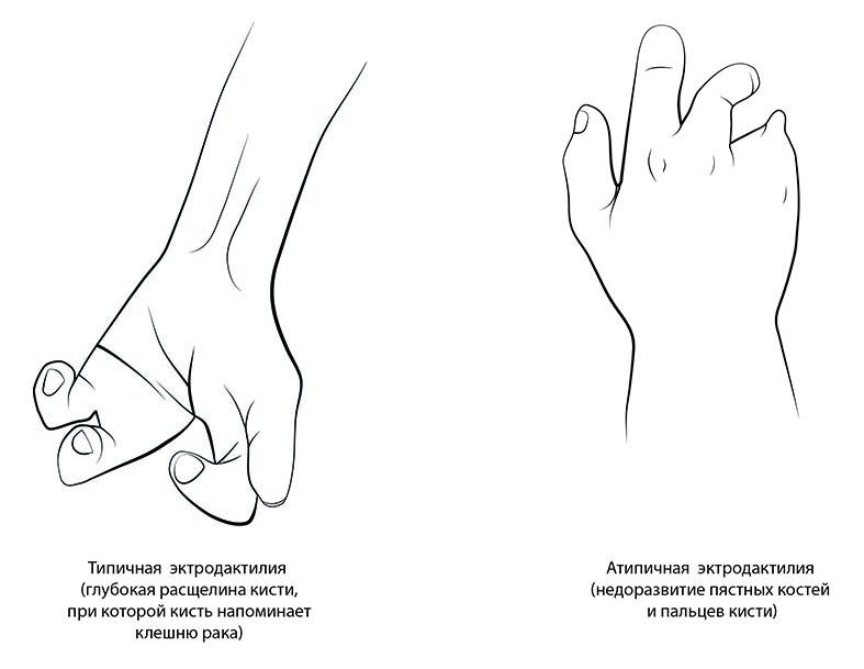 Брахидактилия: причины, типы и лечение короткопалости   лечение болезней   healthage.ru
