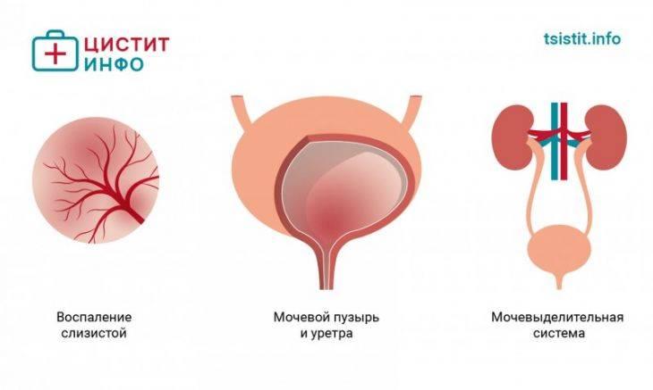 Е. комаровский: цистит у детей - лечение у девочек и мальчиков, симптомы