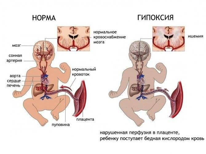 Симптомы гипоксии головного мозга у новорожденных, лечение и последствия постгипоксических изменений у ребенка