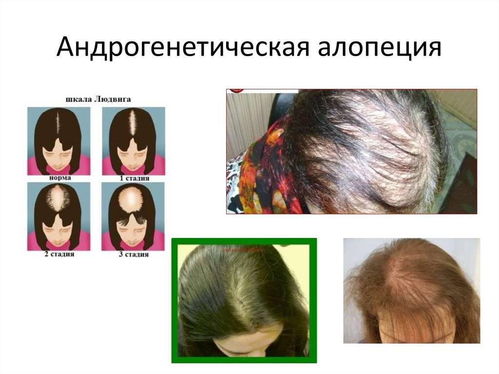 Выпадение волос у детей: причины и лечение