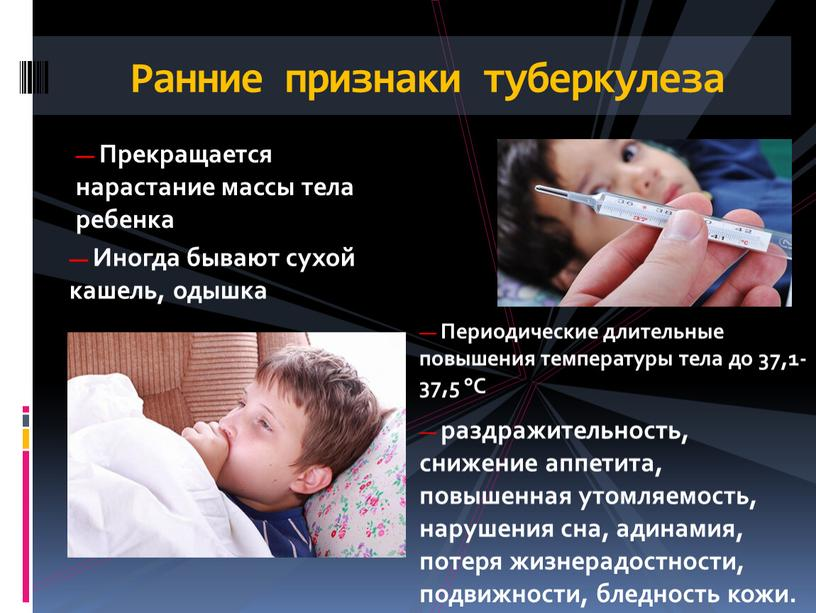 Как проявляется туберкулез у детей, его симптомы и признаки?